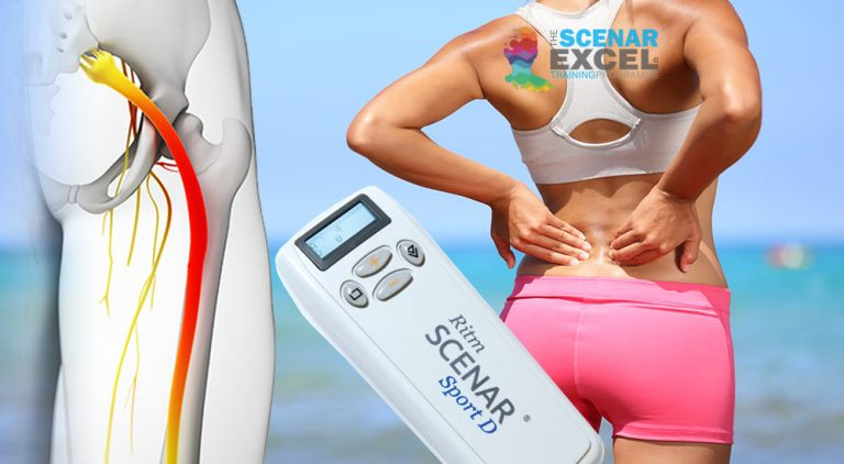 SCENAR training for sciatica