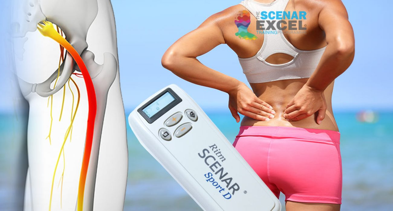 SCENAR training for sciatica